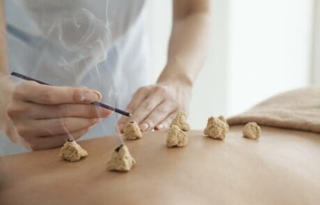 Moxibustion at Acupuncture Center Toronto great for pain pregnancy and labour
