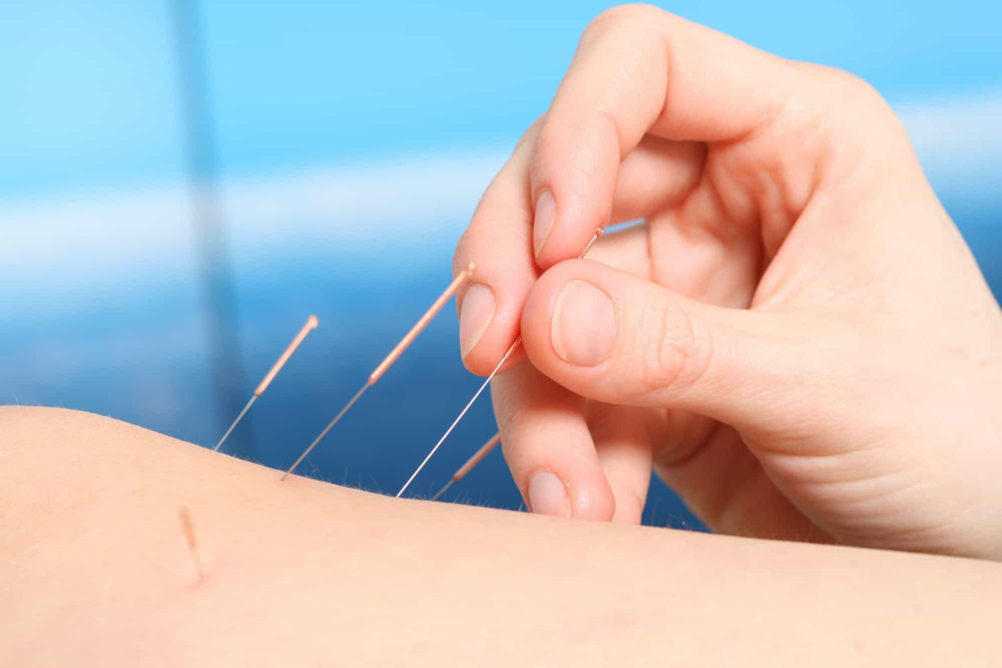 Acupuncture Center Toronto treats all health conditions with Chinese Medicine