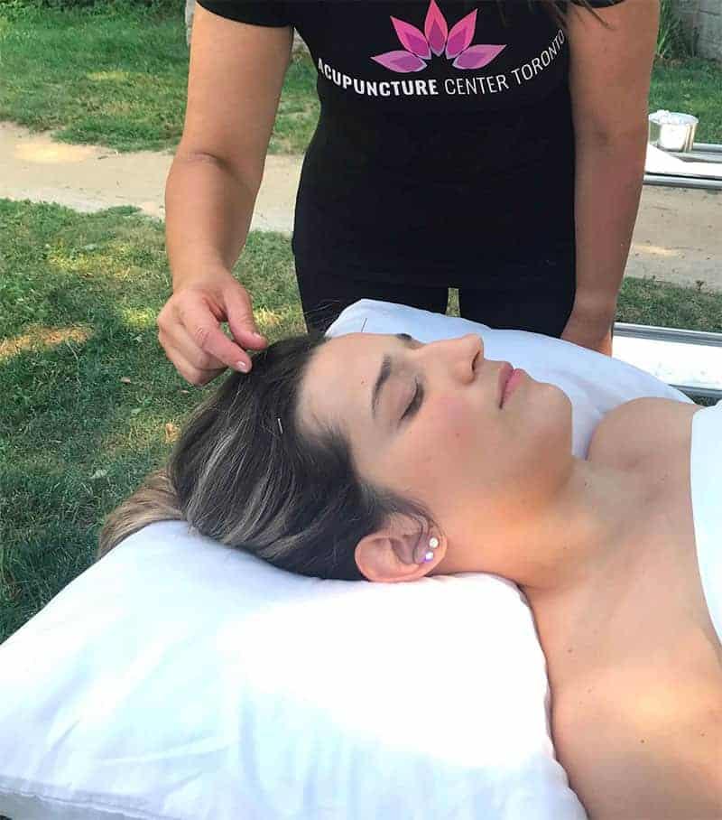 Acupuncture-Center-Toronto-best-Acupuncture-team-downtown-Yorkville-healing