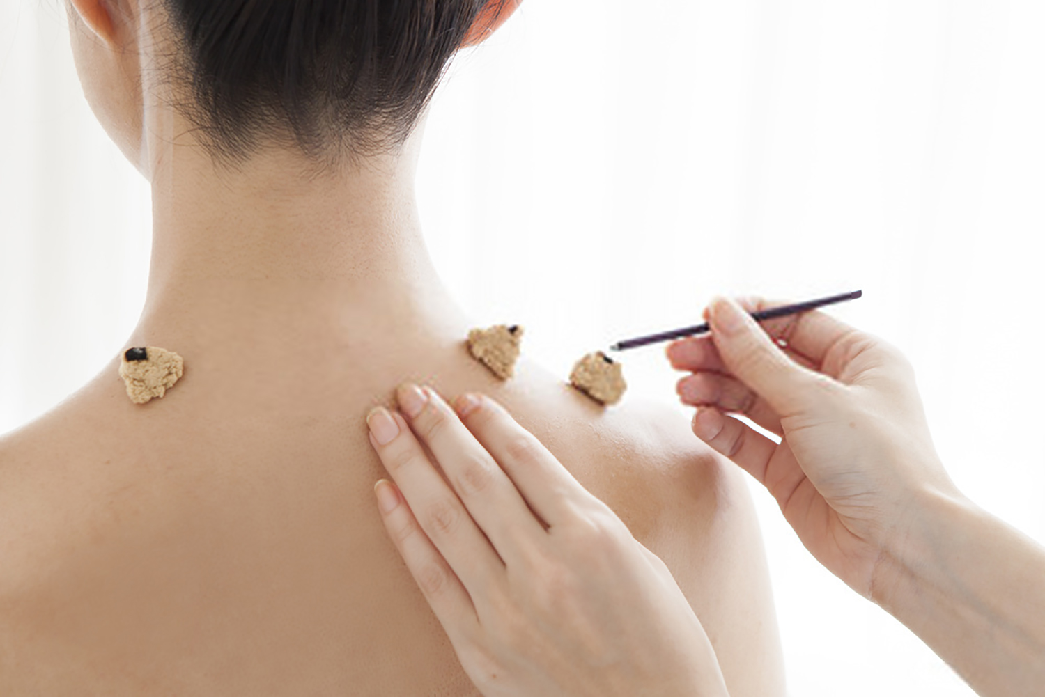 patient receives japanese moxibustion cones on shoulder at acupuncture center toronto in Yorkville