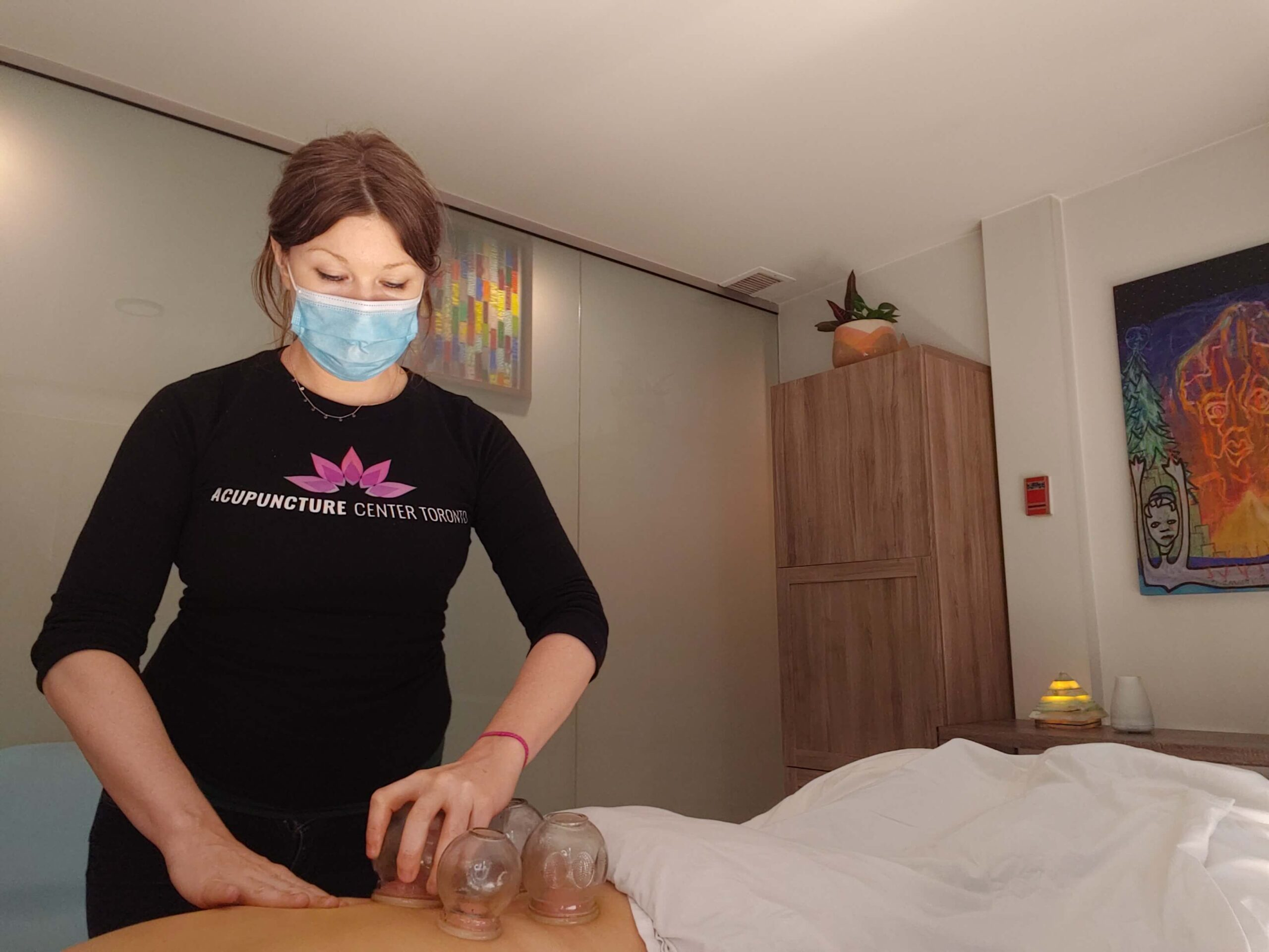 Fire cupping for low back pain at Acupuncture Center Toronto