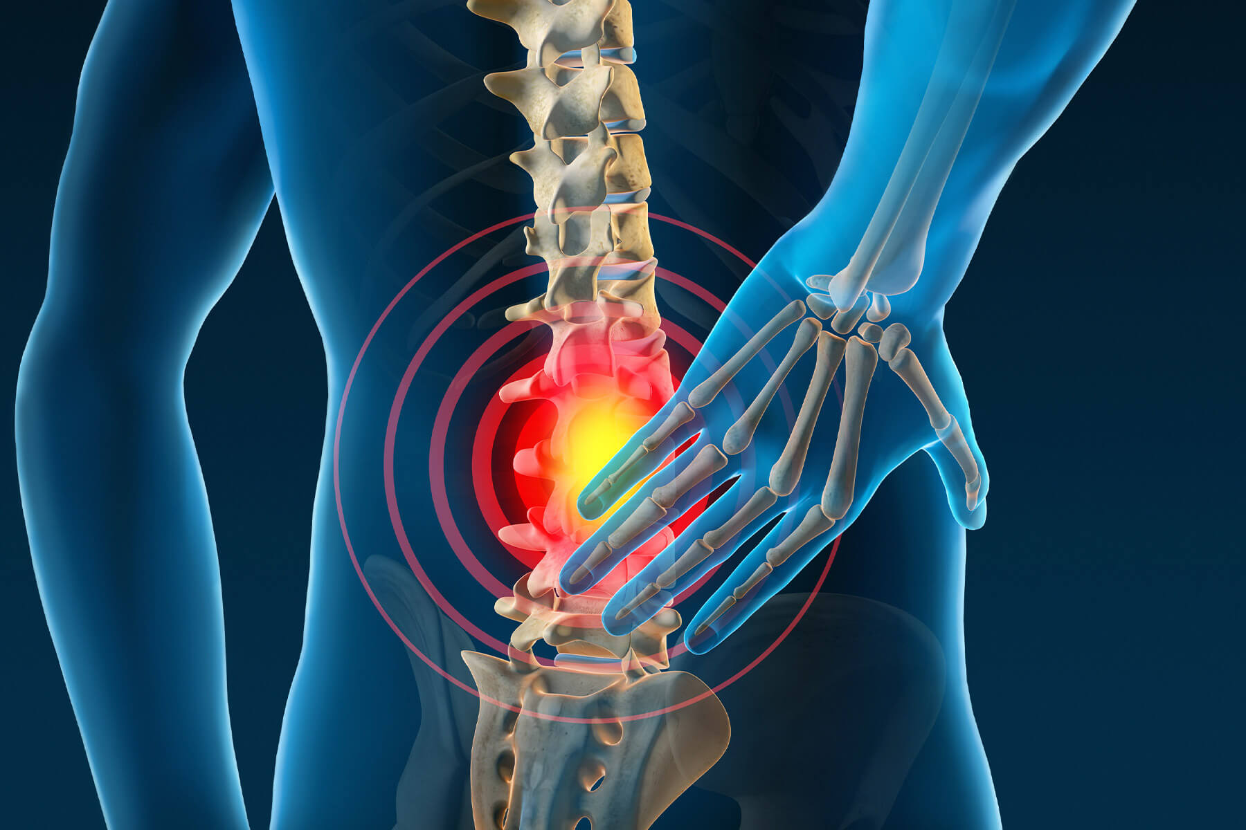 Reduce low back in Yorkville Toronto at Acupuncture Center Toronto