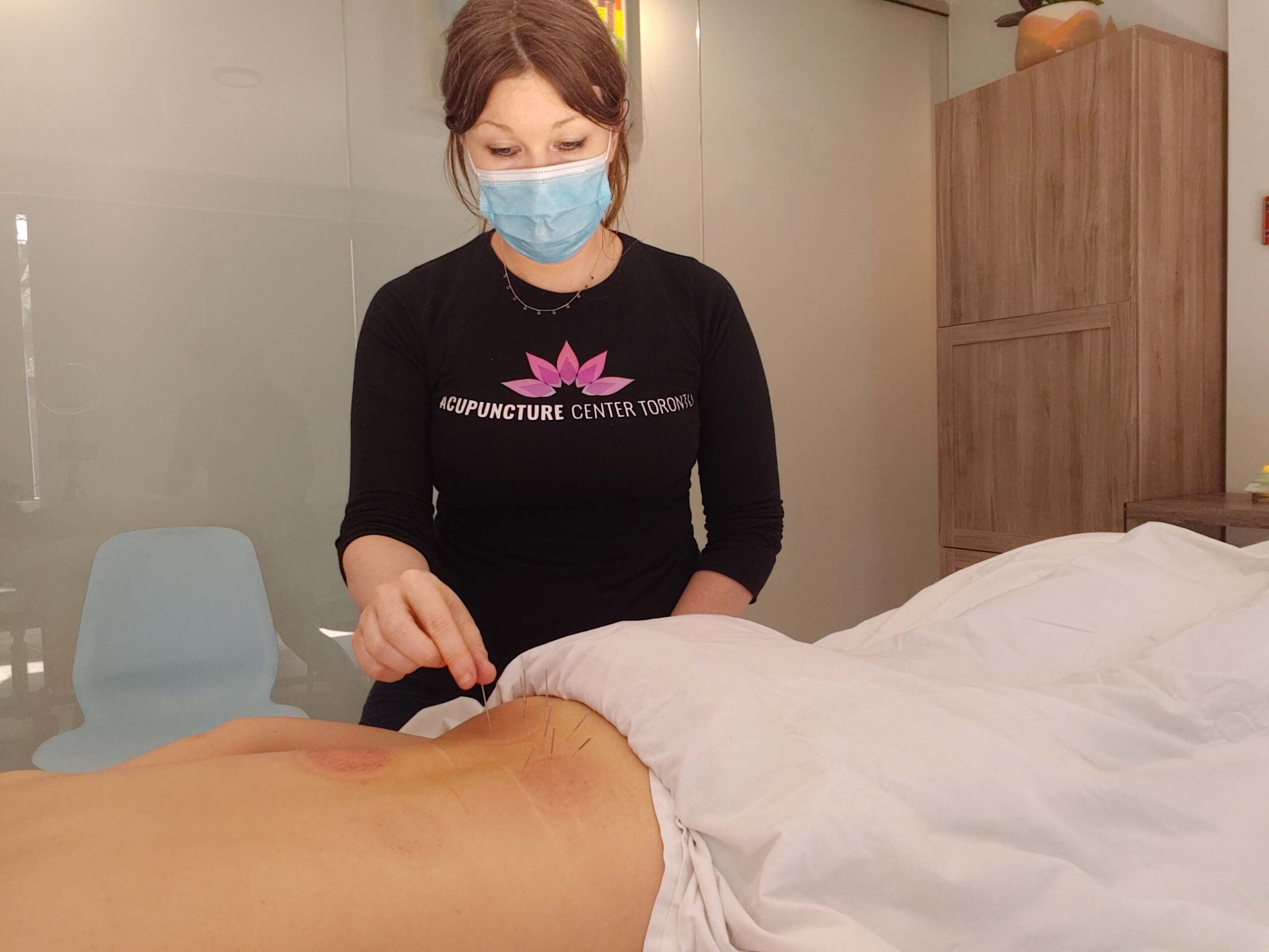 Voted best in Toronto for low back pain at Acupuncture Center Toronto at Bloor and Yonge